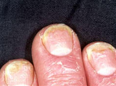 onycholysis nail lifting causes symptoms treatments yahoo