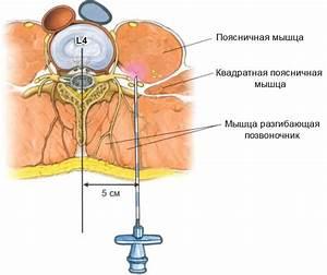 Какие уколы от шейного остеохондроза