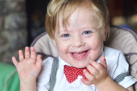 Down Syndrome Wallpapers High Quality   Download Free