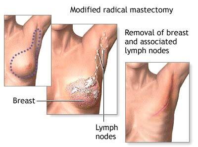 breast cancer treatment  israel