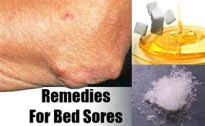 remedies for bed sores vitamins to cure bed sores risk