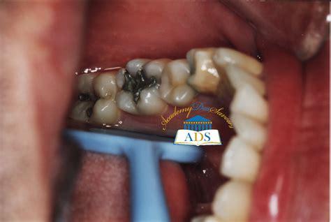 comment calmer une rage de dent astuce sant 233 171 rage de dent 187 ou 171 pulpite 187 calmer la douleur academy des savoirs