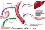 Методические рекомендации лечения диабета