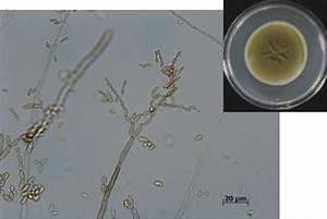Cladosporium Cladosporioides   Cladosporium Is A Common
