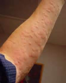 Hives Symptoms, Can Stress Cause Rash and Treatment to Help Allergic ... Allergy