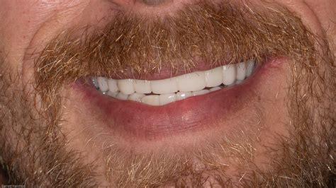 permanent dentures jeff city dentist huntline dental group