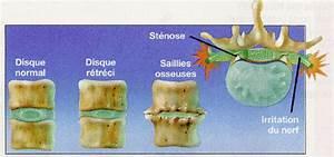 Douleur Milieu Dos Cancer : mal de dos douleurs dorsales douleurs lombaires sant tunisie ~ Medecine-chirurgie-esthetiques.com Avis de Voitures