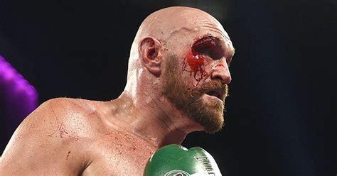 Tyson Fury Eye