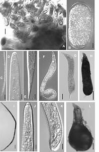 Light Micrographs Of Meloidogyne Incognita From
