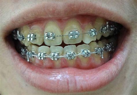 black color braces braces colors black and blue surgery pics