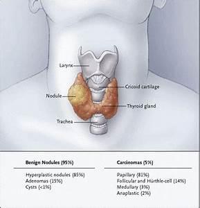 Ganglioni tiroidieni - sanatate, medicina, tratament, boli