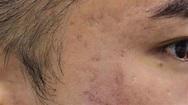 凹凸洞治療前的肌膚狀態1 - YouTube
