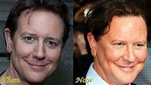 Judge Reinhold Plastic Surgery Before And After Photos ...