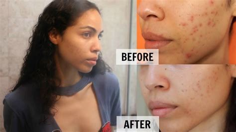thayers toner products i use to remove my acne scars skin care routine