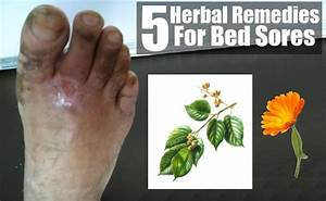 bed sores herbal remedies treatments and cures natural With bed sores treatment products