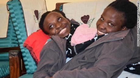 tanzanian conjoined twins die  age  cnn