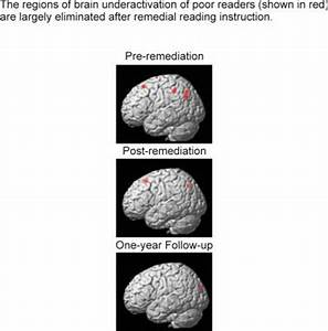 Remedial instruction rewires dyslexic brains, provides ...