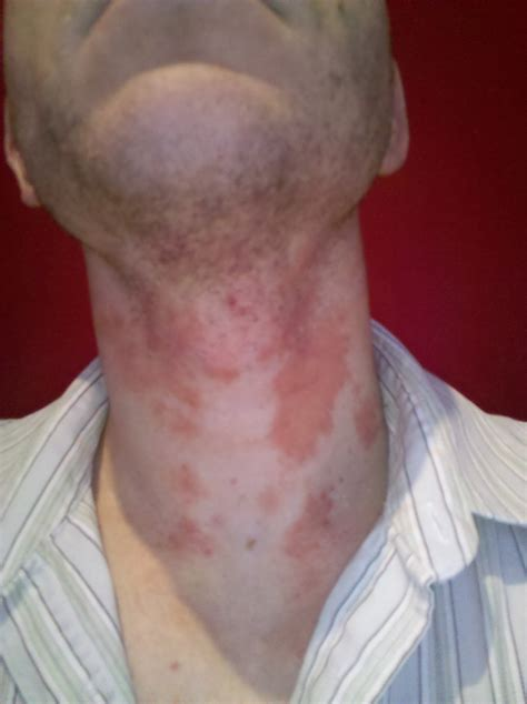 I Have A Rash On My Neck Its Bigger On The Left Side Of My