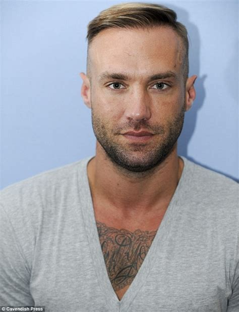 Calum Best reveals his THIRD hair transplant   Daily Mail
