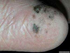 Pin Acral Lentiginous Melanoma Toenail Image Search ...