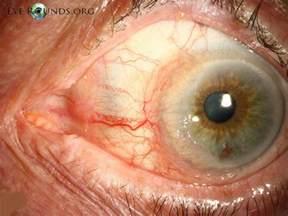 Invasive Squamous Cell Carcinoma