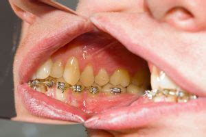 whats  buccal pronounced buckle brampton dentist dr