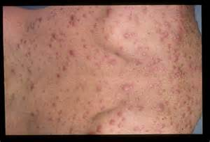 ... PHOTOGRAPHIC EXAMPLES OF SECONDARY SYPHILIS IN HIV-INFECTED PATIENTS Syphilis - secondary