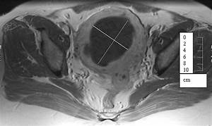Uterine artery embolisation to treat symptomatic uterine fibroids - The BMJ Painful periods