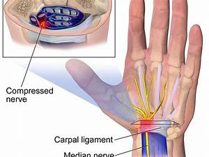 Piano Playing And Preventing Carpal Tunnel Syndrome