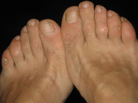 Foot Care What Are Calluses And Corns Worldnewscom