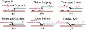 General Procedures Of Surgical Knot Tying   A  Suture
