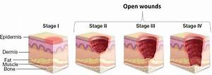 Stages Of Wounds From National Pressure Ulcer Advisory