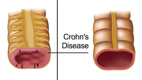 early warning signs  crohns disease