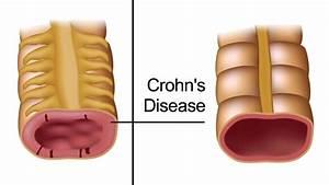 5 Early Warning Signs Of Crohn U0026 39 S Disease