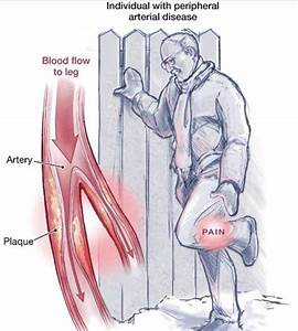 Leg Pain  Pad