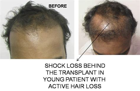 Alopecia recovery time