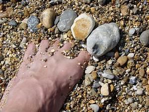 comment soigner une mycose des ongles des mains