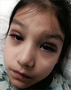 A 7-Year-Old Girl With Periorbital Edema, Ecchymosis, and ...