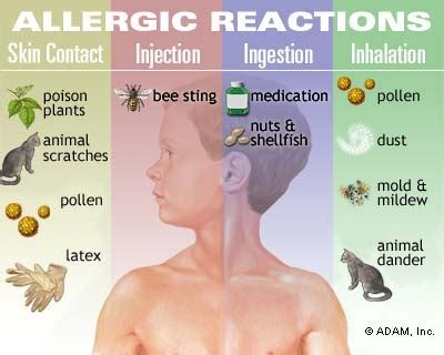 Allergies  Symptoms, Diagnosis, Treatment Of Allergies. Jacksonville Criminal Defense Lawyer. Best Video Game Design Colleges In The Us. Culinary School York Pa Sun Princess Location. How Do Credit Card Companies Make Money. Prostate Cancer Support Groups. Carpet Cleaners In Albuquerque. Nj Charitable Registration Bbmp Property Tax. Searchable Database Software