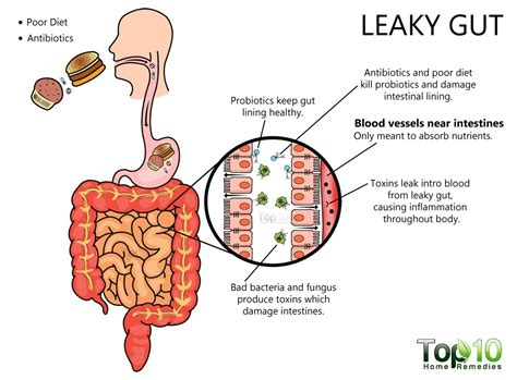 risk factors  leaky gut syndrome    top