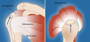 Rotator Cuff Tears  Surgical Treatment Options