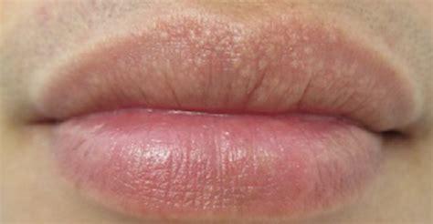 Hamil Muda Boleh Minum Es Hilangkan Bintik Putih Di Bibir Dengan 7 Ramuan Alami Ini