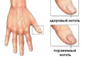 Как выглядит грибок кожи на пальцах рук