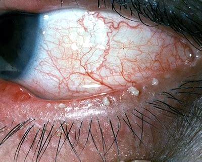 managing ocular surface disease  cataract surgery