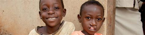 Cleft Lip Charity We Work Treating Cleft Lip And Palate Cbm