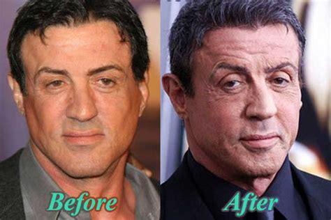 sylvester stallone plastic surgery facelift botox nose job