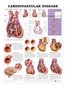 Cardiovascular Disease - Anatomical Products Heart Diseases