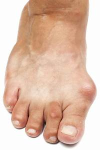 How To Cure Gout With Simple Lifestyle Changes