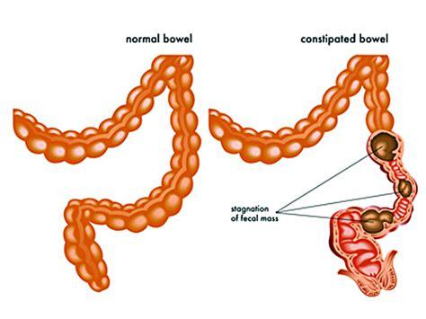 Reizdarm: Was hilft bei Blähungen, Durchfall, Bauchschmerz
