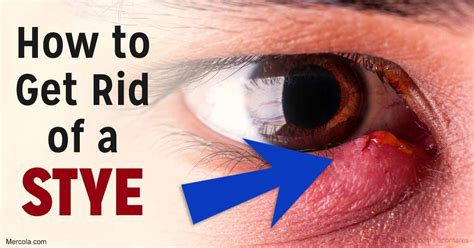 How To Get Rid Of A Stye In Your Eye
